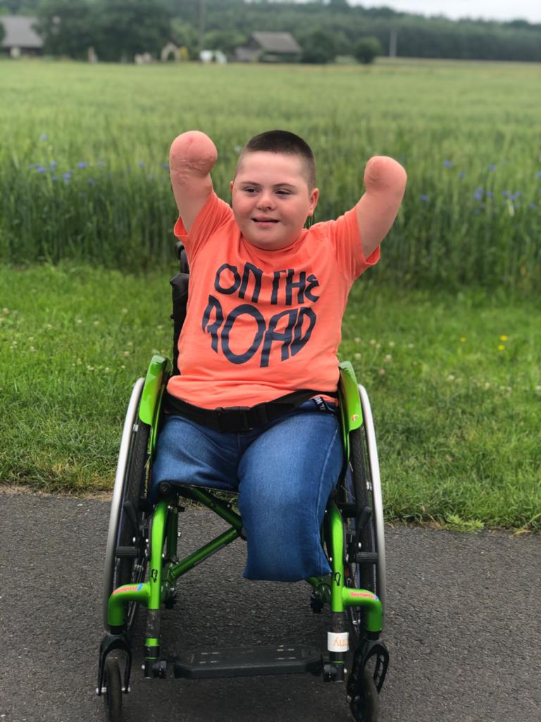 Jestem Bartuś. W wieku 11 miesięcy przeszedłem sepsę, w wyniku której amputowano mi rączki i nóżki. Aby się usamodzielnić potrzebuję protez.